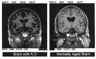 Obraz mózgu pacjenta z zaawansowaną chorobą Alzheimera (po lewej) różni się od obrazu mózgu zdrowego człowieka (po prawej). (źródło: FAS.org)